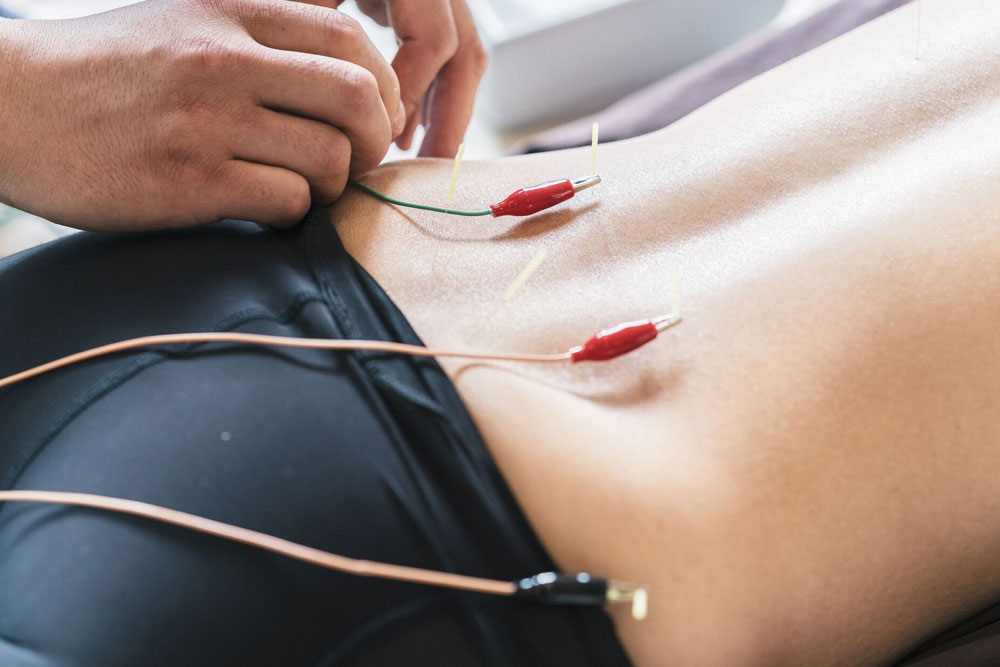 Electroacupuncture at Osteopath Kettering